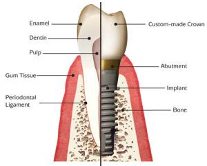 budowa implant