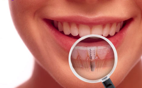 poland-dental-implants